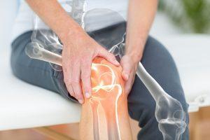 Knee Pain Doctor   Gilbert AZ