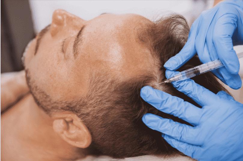 Platelet Rich Plasma (PRP) Hair Restoration   Gilbert, AZ